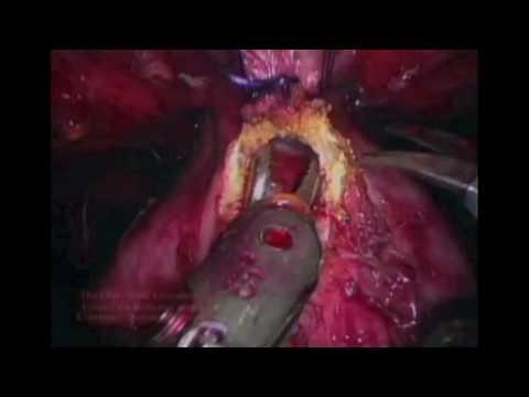 「Catherine Mohr:手術的歷史與未來」- Surgery's Past, Present and Robotic Future