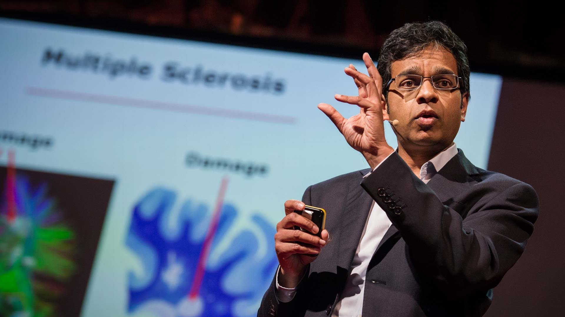 Siddharthan Chandran:受損的大腦是否能自我修復?