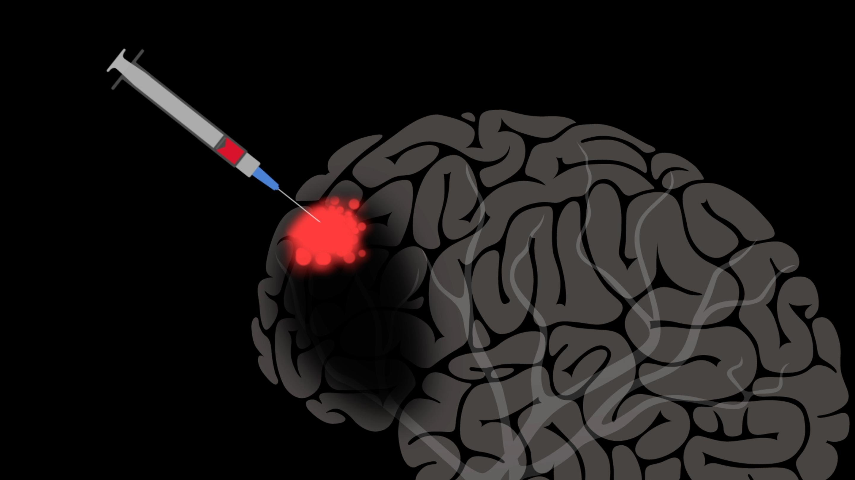 Jocelyne Bloch:只需要一點幫忙,腦部或許能自我修復